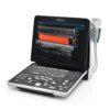 przenosny-aparat-USG-Mindray-Z60-03