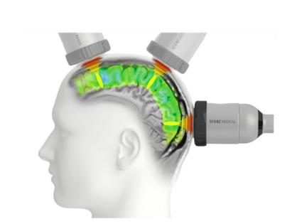 Webinar - Przezczaszkowa stymulacja tętna (TPS) u pacjentów z chorobą Alzheimera - 24.03.2021r.
